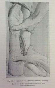 Transfusion de bras à jambe